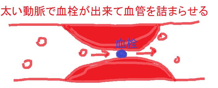 アテローム血栓性梗塞