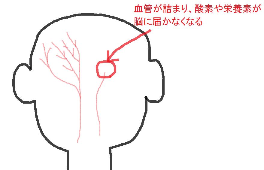 血管が詰まる